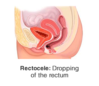 Rectocele: Dropping of the rectum